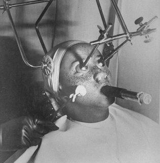A legőrültebb kozmetikai kezelések a múlt századból